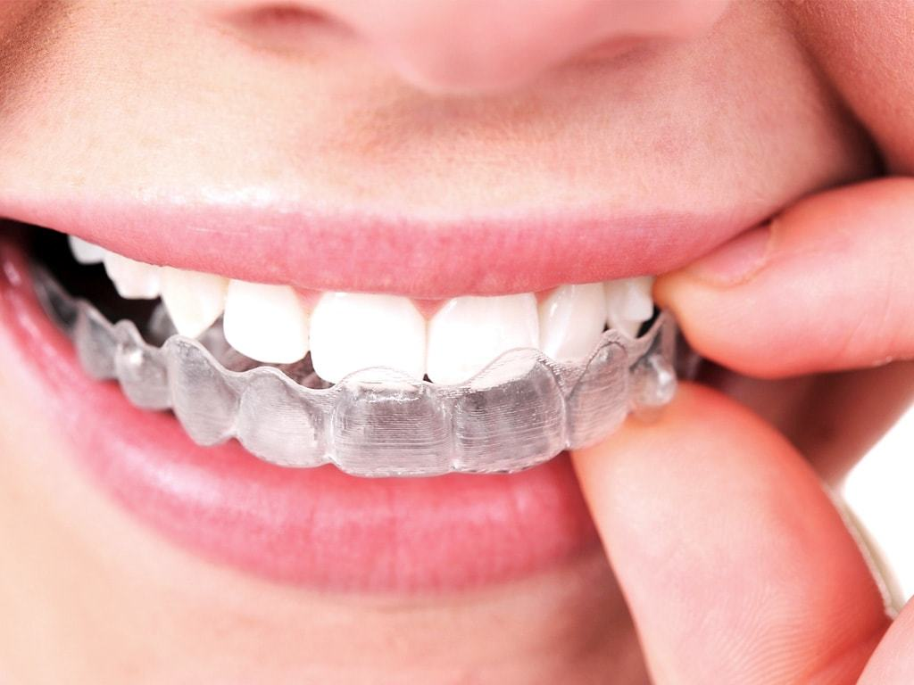 Benefits of Invisalign 11204 and How to Use it Properly